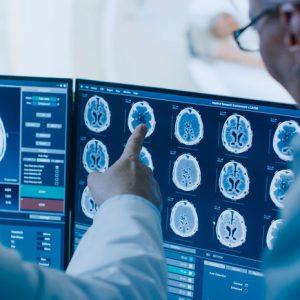 Neurología y polisomnografía